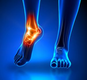 Ankle pain after an Auto Accident